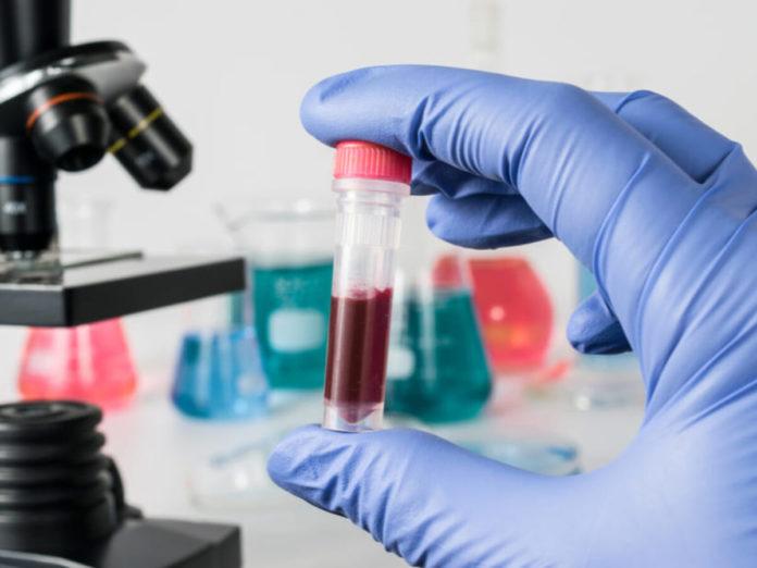 Confirmaron 173 casos nuevos de coronavirus, y nueve muertes más