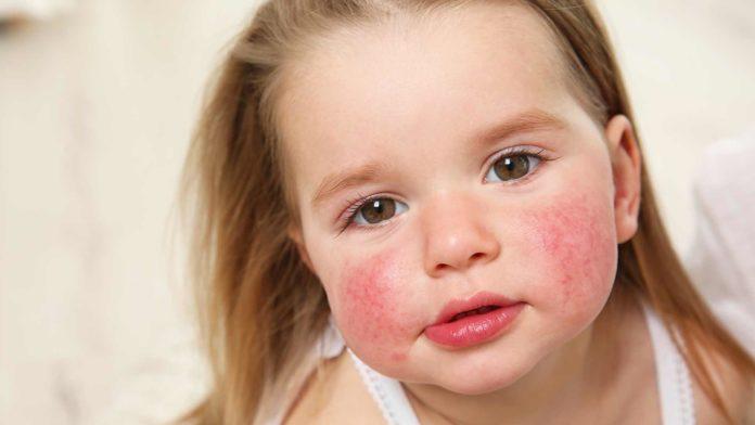 Dermatitis atópica, la enfermedad que pica todo el tiempo