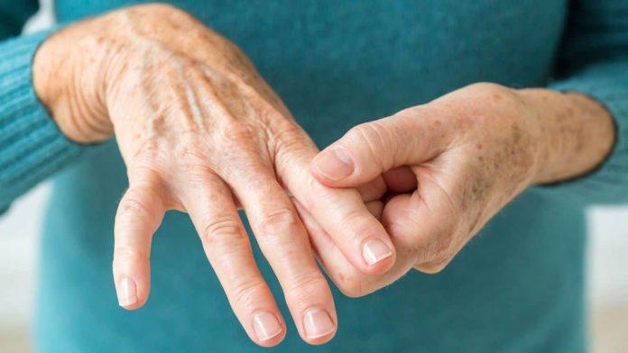 Artritis: solo se hace un 25% de las consultas en comparación con otros años