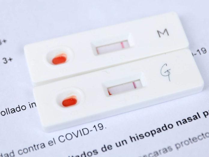 Covid: Confirman 6.899 nuevos contagios y el uso de camas UTI está en 55,7%
