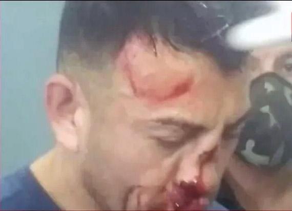 Los Toldos: Presos desfiguraron a golpes al femicida de Analía Maldonado
