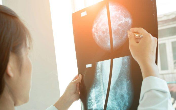 Desarrollan un algoritmo para detectar el cáncer de mama